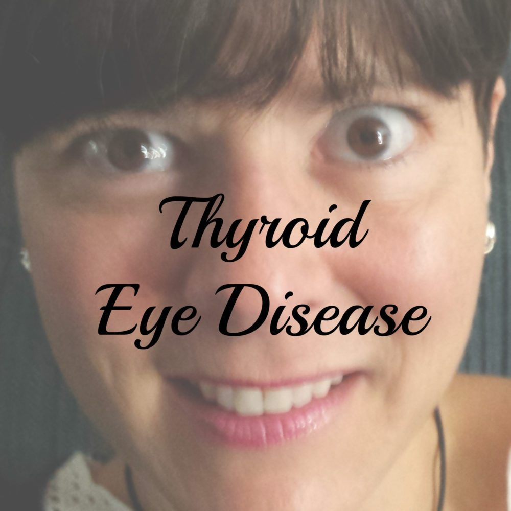 this-is-thyroid-eye-disease